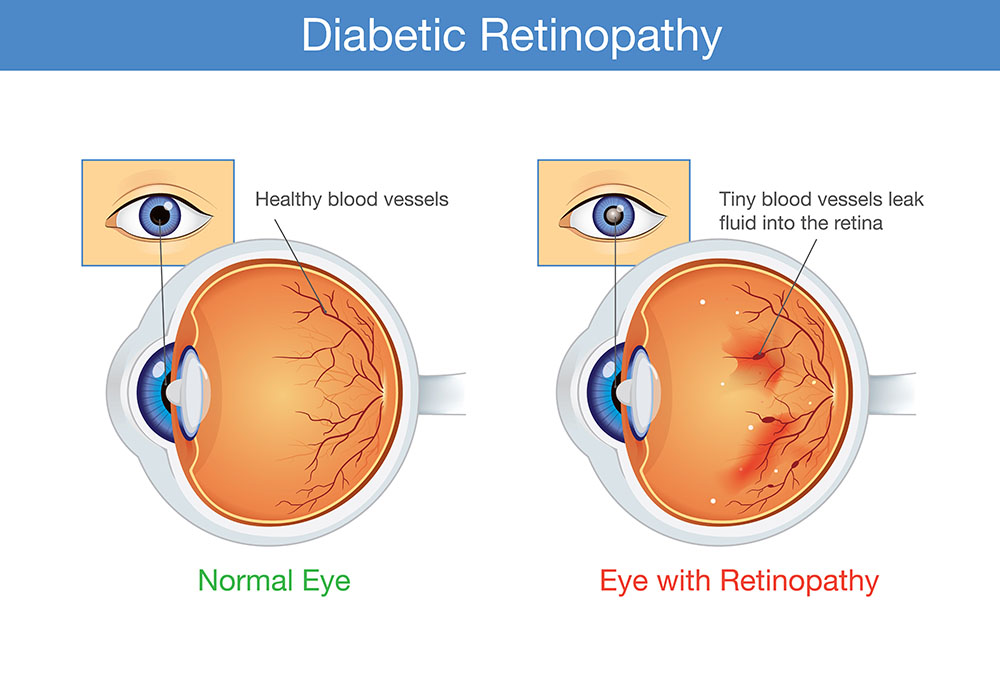 Normal Eye vs Eye with Retinopathy