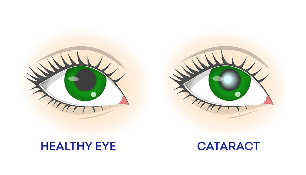 Healthy Eye vs Eye with Cataract