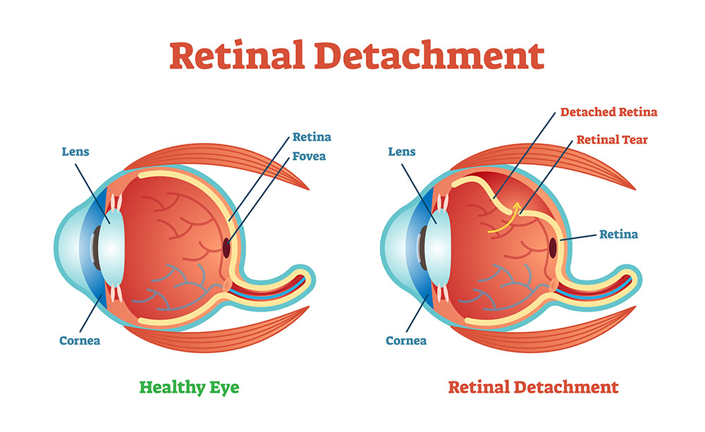 Healthy Retina vs Eye with Retinal Detachment