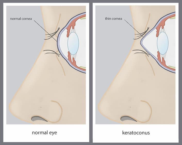 Normal Cornea vs Cornea with Keratocongus