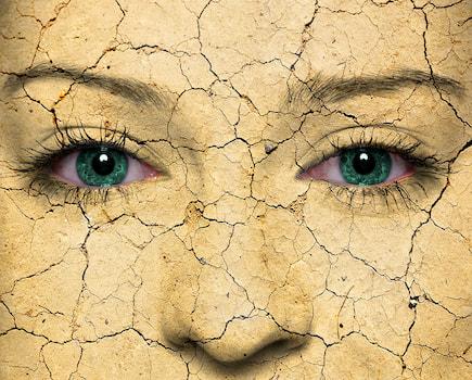 Dry Eye image, red watering eyes