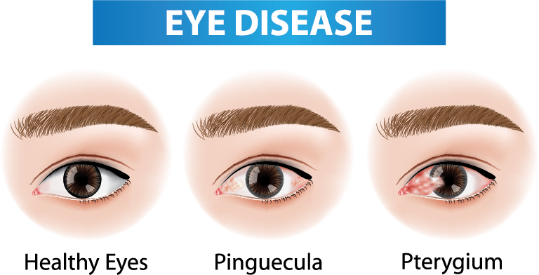 Comparison of Healthy Eye vs Pinguecula and Pterygium